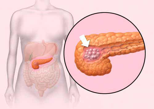 すい臓がん:5つの初期症状