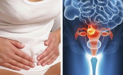 気を付けて!  子宮頸がんを知らせる 7つの症状