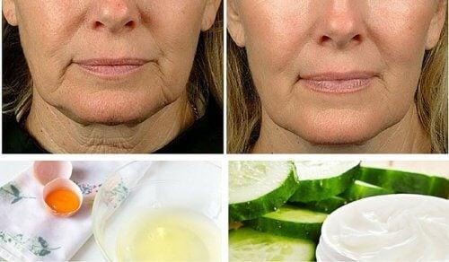 facial-sagging-remedies