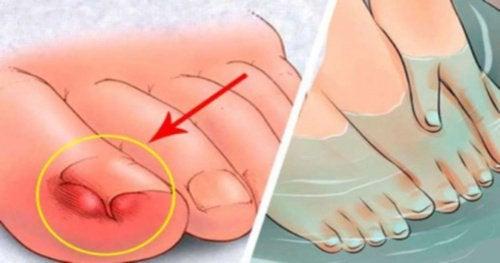 足の痛みよ、さようなら!/陥入爪の症状を緩和する家庭療法6選