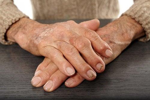 alivia-la-artritis-500x334