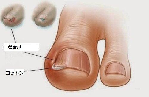 足の巻き爪に効く6つの方法