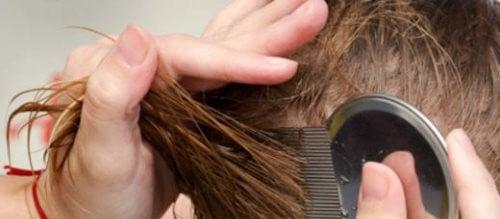 頭シラミを駆除する自然療法7選