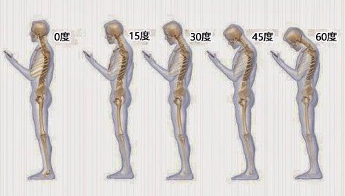 首の痛みの原因となる6つの生活習慣