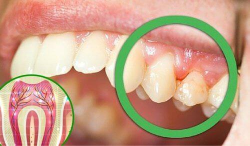 歯が痛い!6つの主な原因