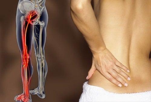 座骨神経痛を判断する方法