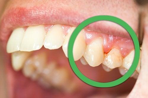 gingivitis-500x330