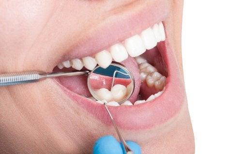 緑茶で虫歯予防