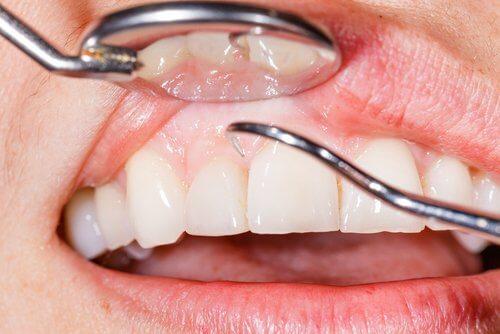 歯茎とのどの炎症