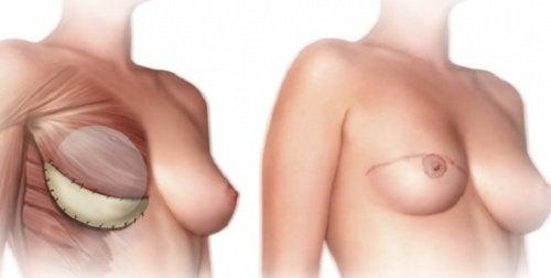 乳房切除術の前に知っておくべきこと3選