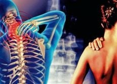 cervicobrachial-syndrome