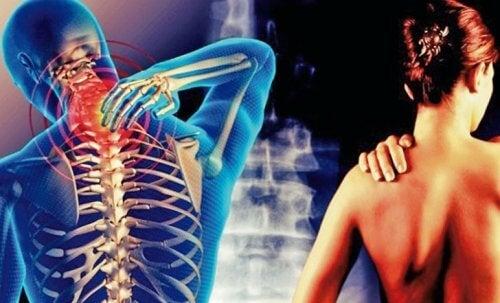頸肩腕症候群:首から腕にかけての痛み