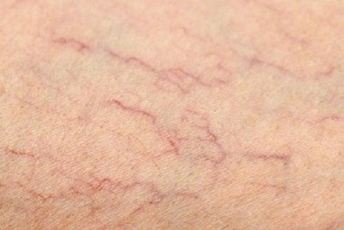 クモの巣状静脈瘤のための自然療法