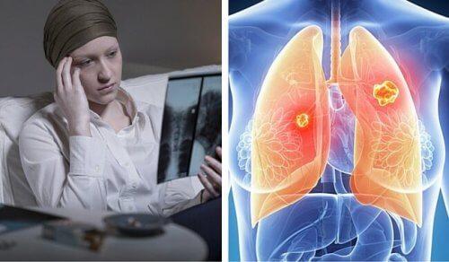 なぜ?女性の死亡率が増加している肺がん