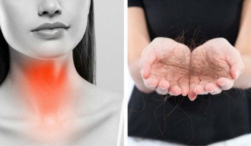 甲状腺疾患が原因の抜け毛対策8選
