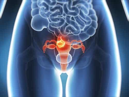 知っておくべき子宮頸がんの6つの症状