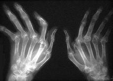 arthritis-4