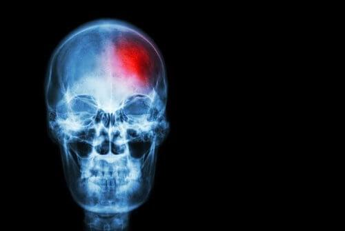 知っておくべき脳卒中の兆候
