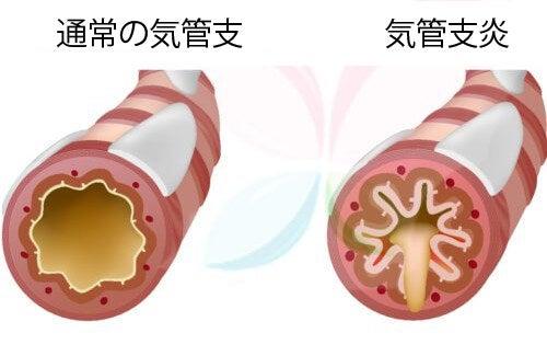 喘息に良い食べ物10