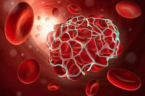 血栓症・脳卒中を予防する9つの食べ物