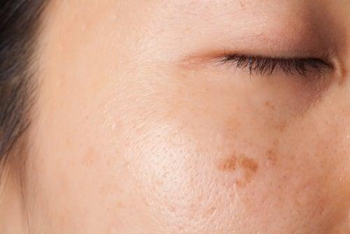 2-skin-spots