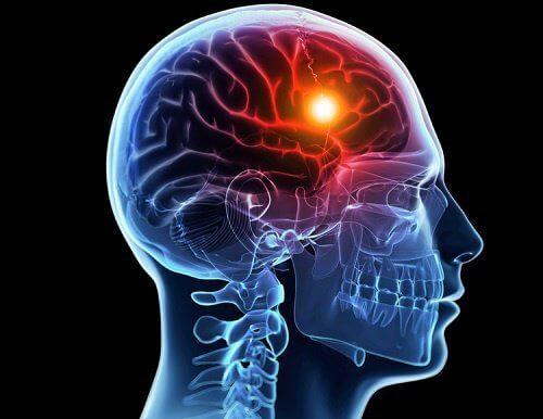 脳卒中になる前にあらわれる8つの兆候
