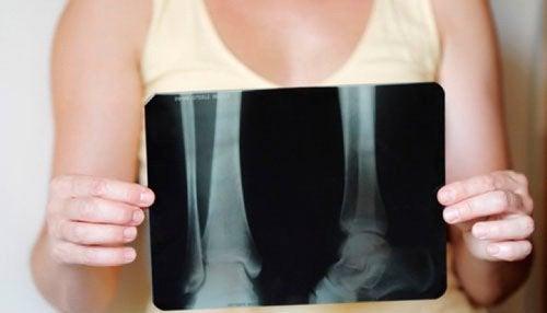 閉経後も骨密度を維持するには/どうしたらいい?