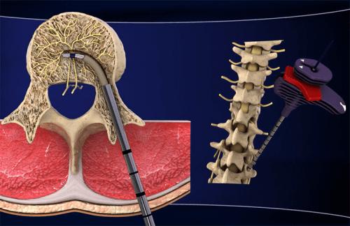 慢性の腰痛に効く最新治療法