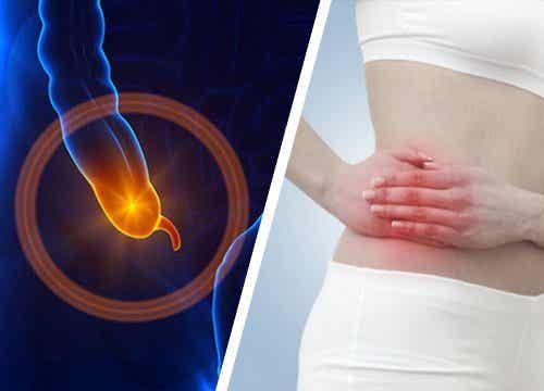虫垂炎の兆候と症状