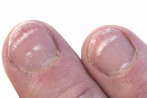 爪に白い斑点ができるのはなぜ?