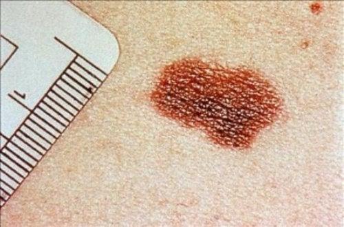 見逃さないで!  皮膚ガンのサイン