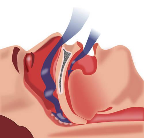 睡眠時一時的無呼吸症候群の治療法