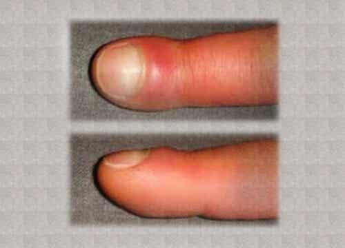 指のむくみ:原因と対処法