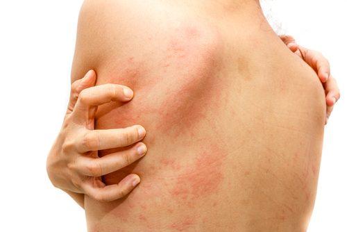 蕁麻疹を治す自然療法