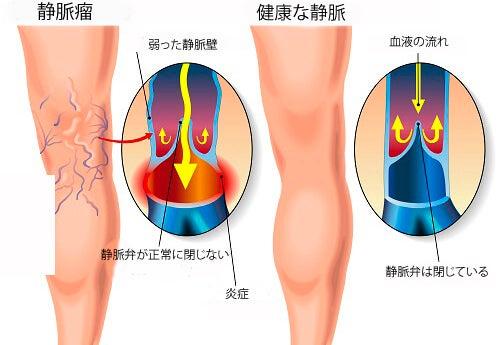 静脈瘤に効果的なエクササイズ