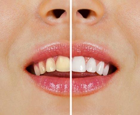 自然のもので歯を白くする方法