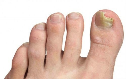 foot with nail fungus