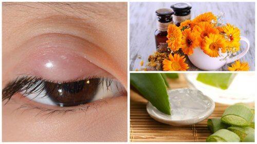 ものもらいに効く7つの自然療法