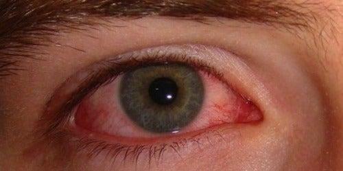 充血の原因と簡単な治療法