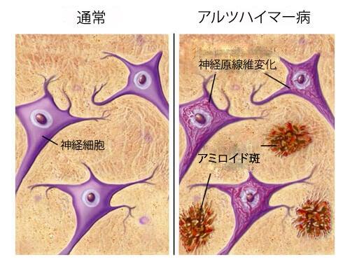 アルツハイマー病を予防する食べ物