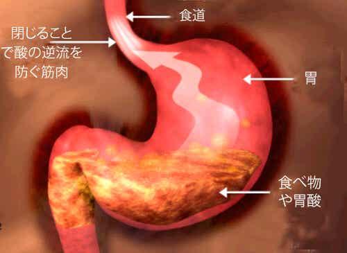 胃食道逆流症の人にオススメの食生活
