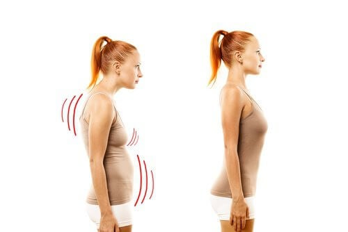 fix-posture-2-500x334