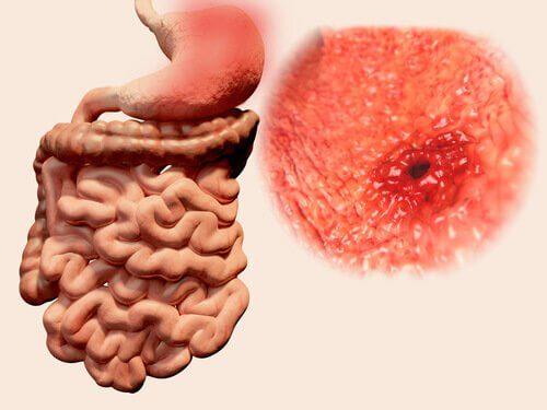 潰瘍や寄生虫によるガス