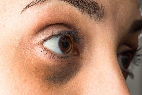 目袋の原因とその改善法