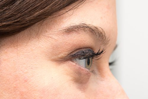 目の下のふくらみ、目袋の原因とその改善法