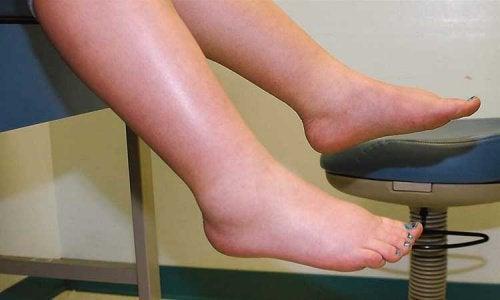 体液貯留の症状を和らげるための3つのアドバイス