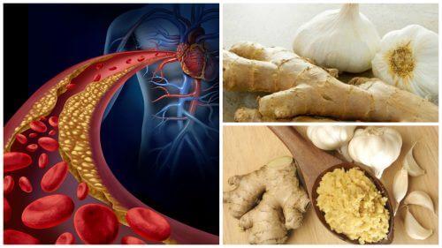 高血圧と高コレステロール血症に効く/ショウガ・ニンニク療法