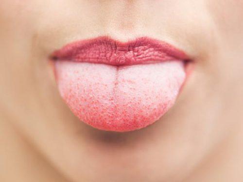 舌から分かる9つの健康状態