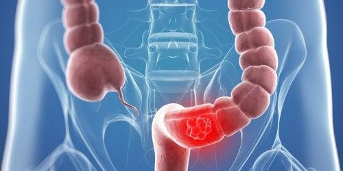 大腸ガンの予防と症状緩和に効果的な自然療法9選