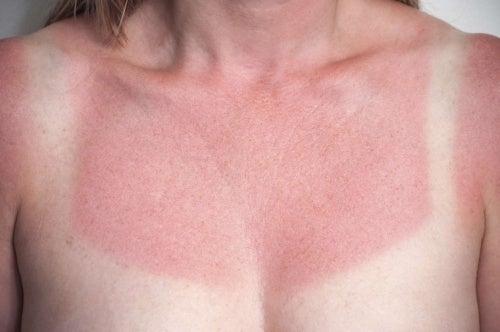 日焼けをした肌
